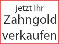 Zahngold Online Verkaufen