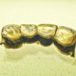 Goldkronen oder Brücken verkaufen