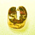 zahnkrone-aus-gold